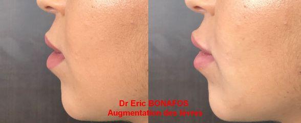 Légère augmentation des lèvres - Dr Eric Bonafos