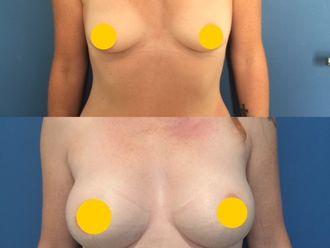 Augmentation mammaire - 629996