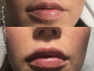 Augmentation des lèvres-629998