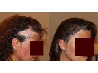 Chirurgie reconstructrice - 633573