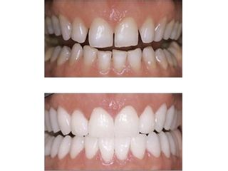 Avant après Reconstruction dentaire