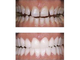 Chirurgie maxillo-faciale - 543663