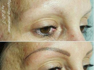 Dermopigmentation-633301