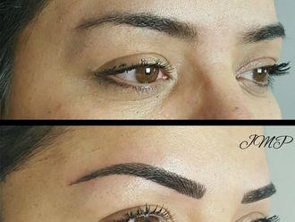 Dermopigmentation-633302