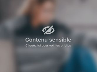 Détatouage - 514796