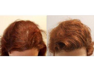 Greffe de cheveux-543291