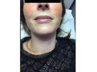 Avant Augmentation des lèvres
