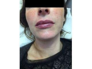 Après Augmentation des lèvres