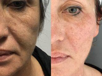 Botox-647636