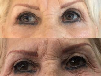 Botox-647637