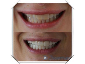 Blanchiment des dents-557402