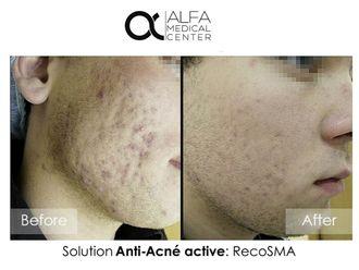 Traitement anti-acné-632953