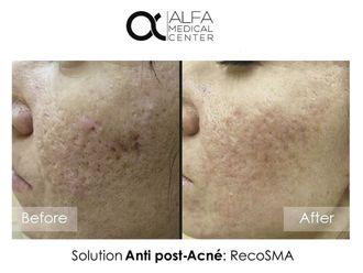 Traitement anti-acné-632954