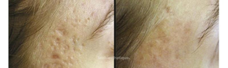 style cicatrices d'acné
