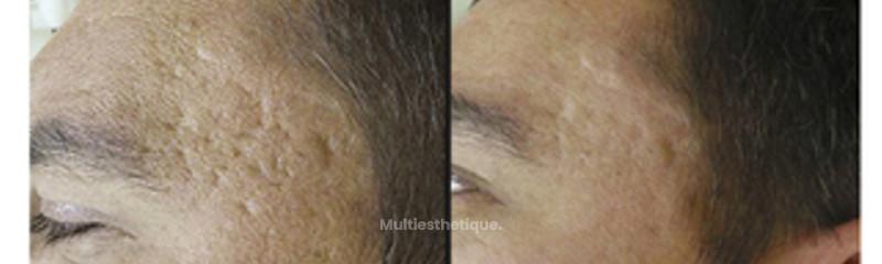 style poste acné avant après