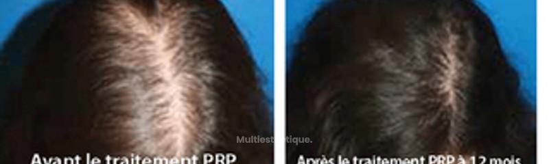 Injections de PRP