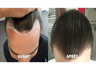 Greffe de cheveux-557219