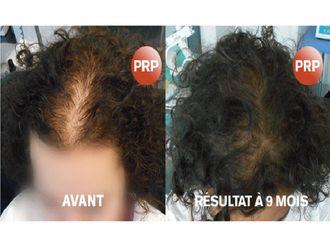 Greffe de cheveux-557221