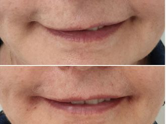Augmentation des lèvres-639594