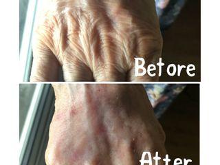 Avant après injection acide hyaluronique