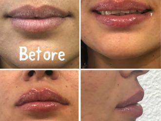 Augmentation des lèvres-630241