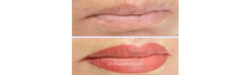 Dermopigmentation des lèvres