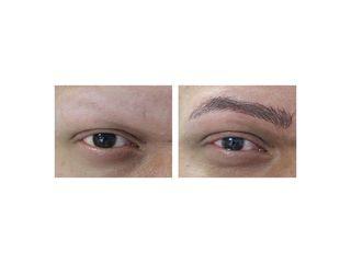 Avant après Dermopigmentation