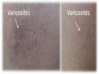 Varices-208444