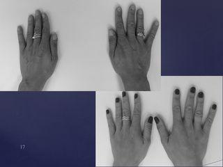 Avant après Lipomodelage mains