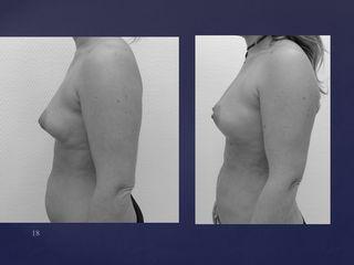Avant après Lipomodelage des seins