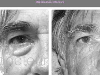 Blépharoplastie-660651