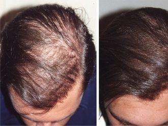 Implants capillaires - 536404