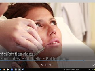 Augmentation des lèvres - 625751