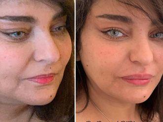 Augmentation des lèvres-739258
