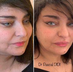 Augmentation des lèvres - Dr. Pascal Didi