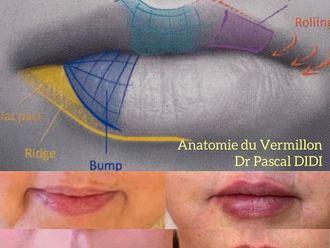 Augmentation des lèvres-787999