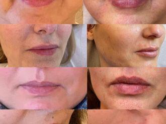 Augmentation des lèvres-788000