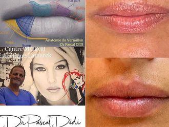 Augmentation des lèvres - 798061