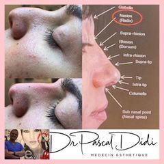 Rhinoplastie médicale - Dr. Pascal Didi