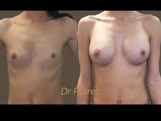 Augmentation mammaire - 633560