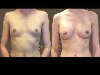 Augmentation mammaire - 633561