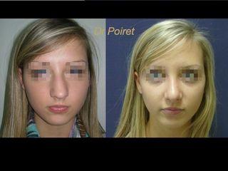 Avant après rhinoplastie face