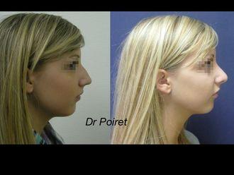 Chirurgie Esthétique-633566