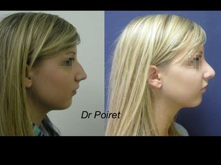 Avant après rhinoplastie profil