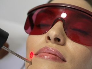 Epilation Laser Alexandrite
