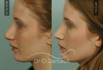 Dr Olivier Gerbault - Rhinoplastie