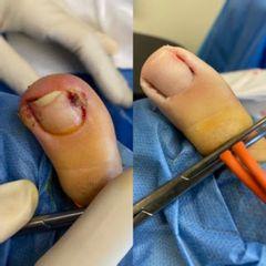 Traitement d'onychomycose en ongle incarné au laser Nd Yag