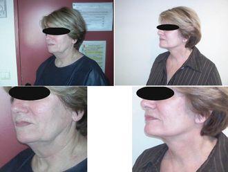 Chirurgie Esthétique-551086