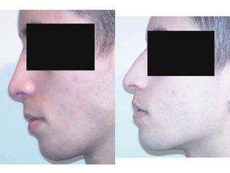 Chirurgie Esthétique-551112