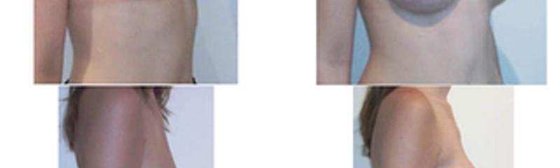 Implants anatomiques